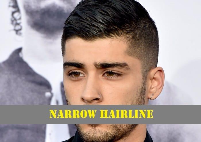 Narrow Hairline