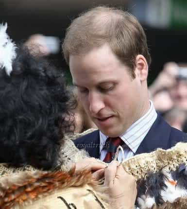Prince William hair loss picture.