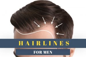 Types of Hairlines for Men