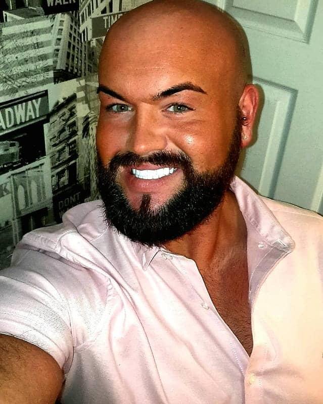 bald head with thick beard