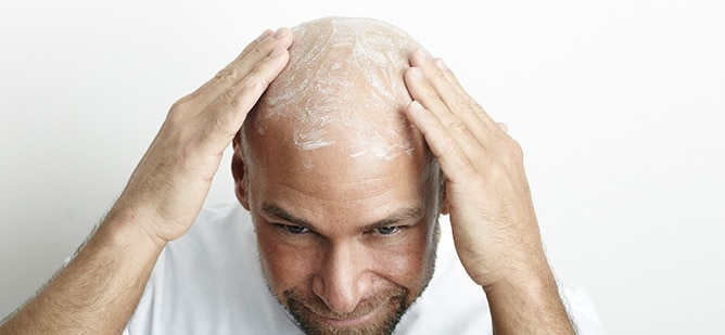apply moisturizer to get shiny bald head