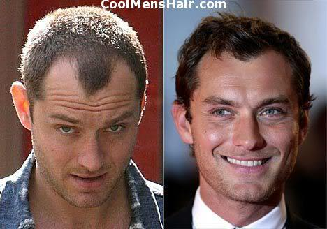 Photo of Jude Law hair transplant.