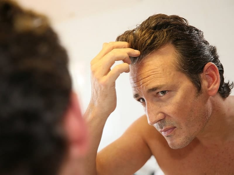 reducing hair loss for men over 40