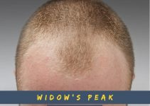 The Best Haircuts for Widow's Peak